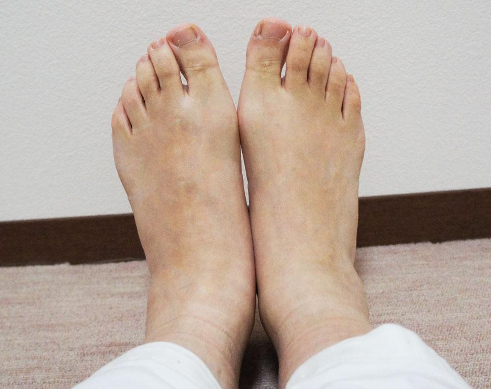 足のむくみ 整体後