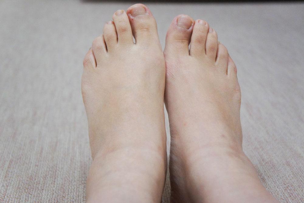 足のむくみ 整体前
