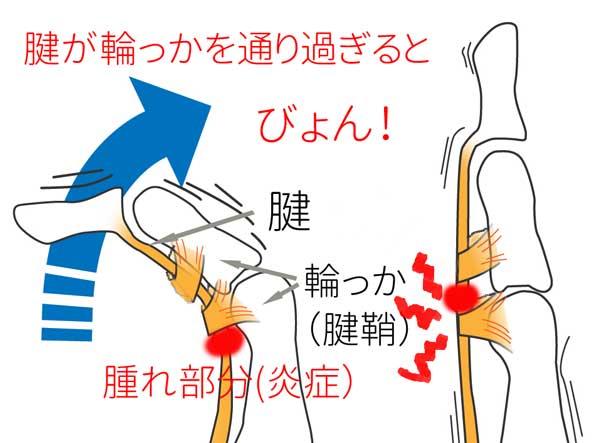 ばね指の図